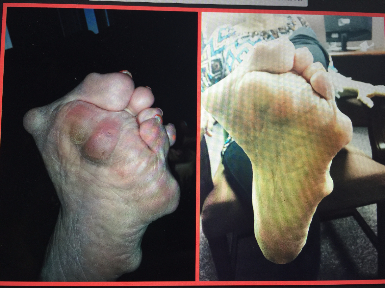 Regina Foot