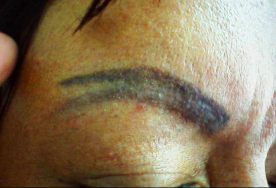Permanent Eyebrow Nightmare