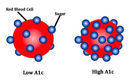 Low versus High HbA1c