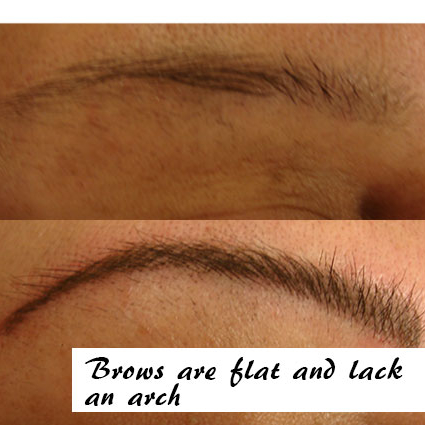 Brows are Flat and Lack an Arch