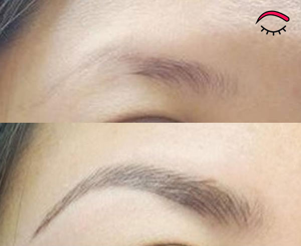 microblading with softap