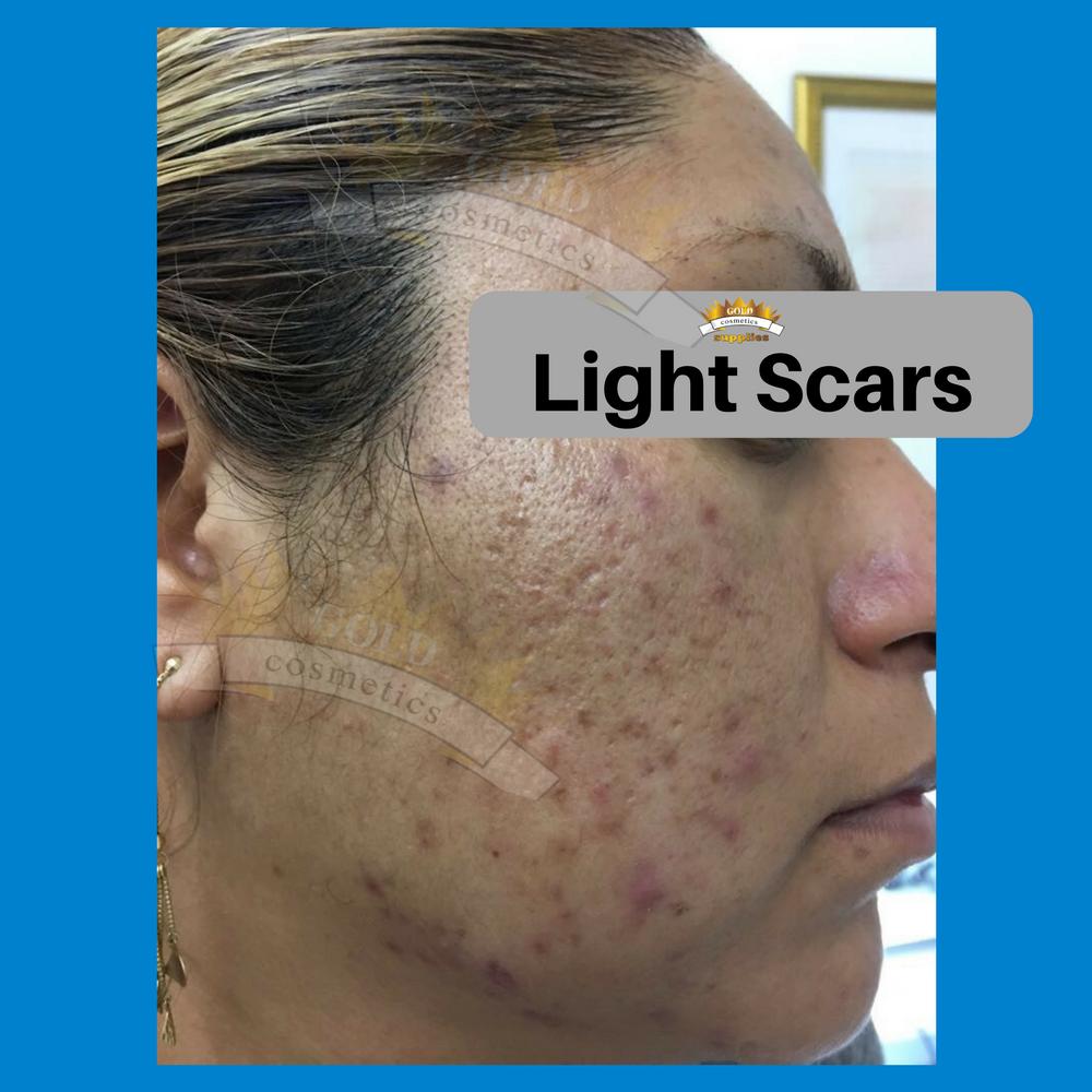 light scars