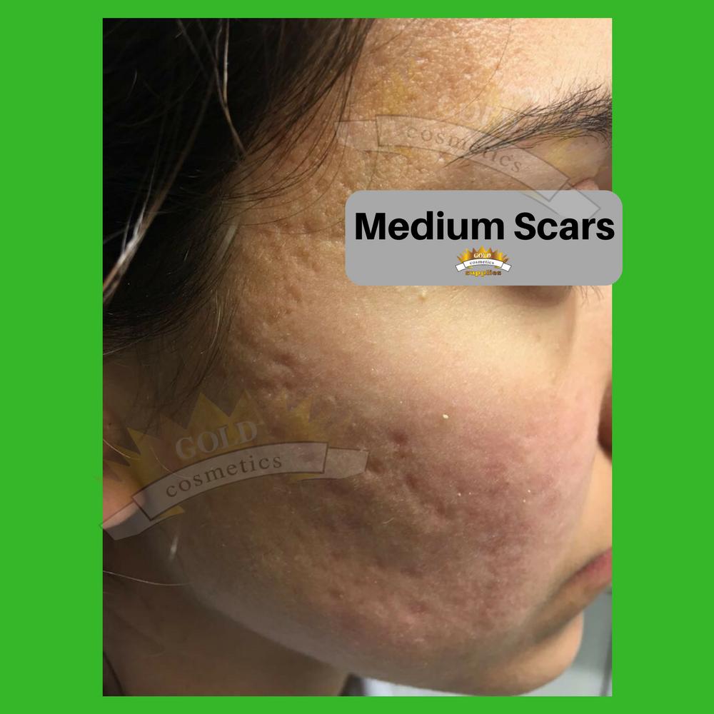 medium scars