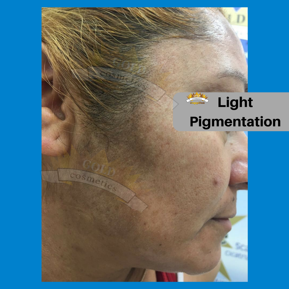 Light pigmentation