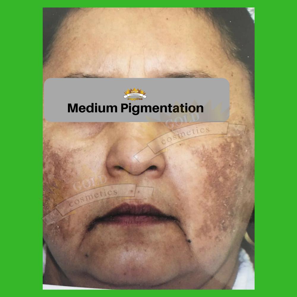 medium pigmentation