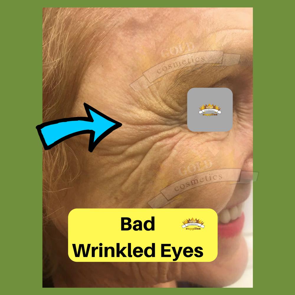 bad eyes wrinkles