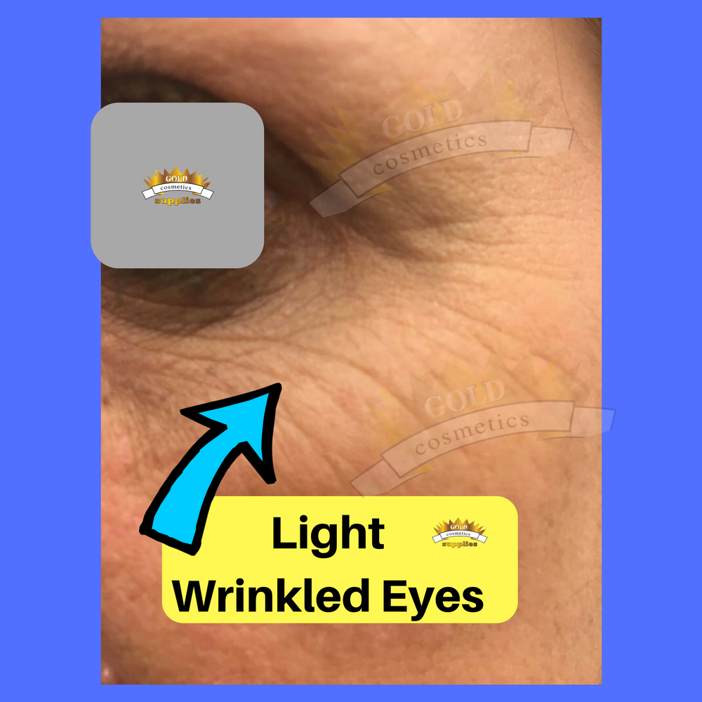 light eyes wrinkles