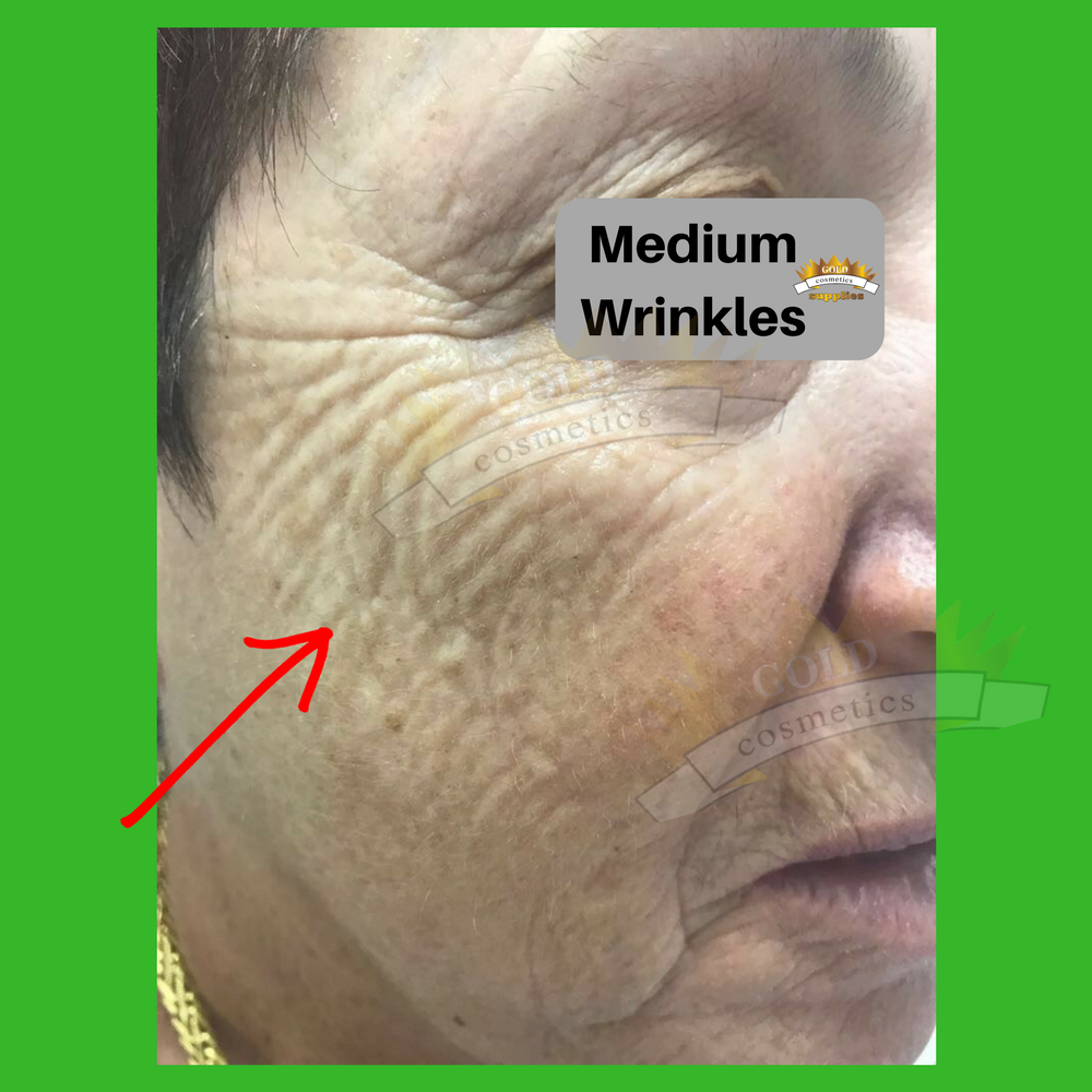 Medium wrinkles