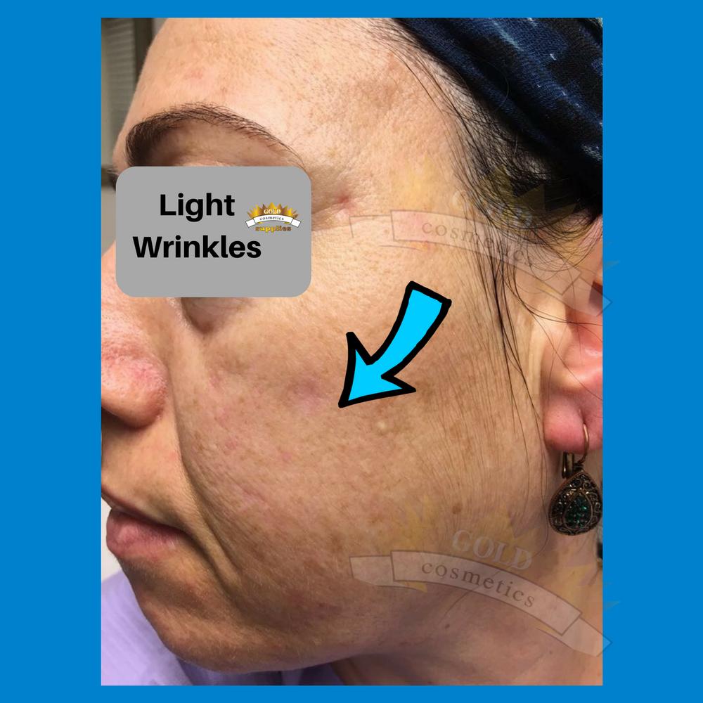light wrinkles