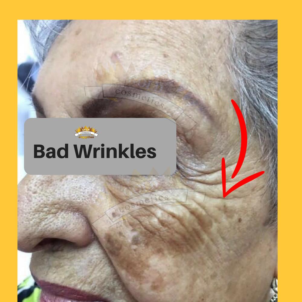 bad wrinkles