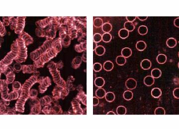 dark field blood image