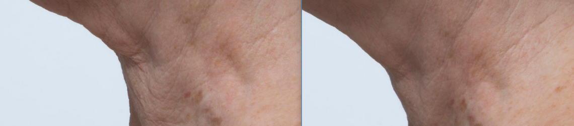 Home microdermabrasion B&A