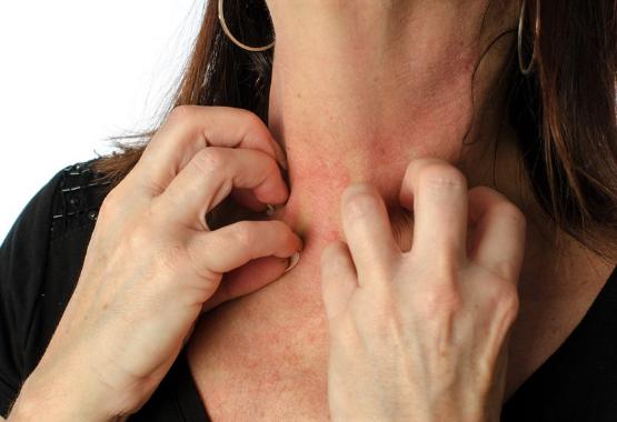 Manuka oil ointment for eczema
