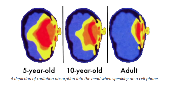 radiation absorption into head