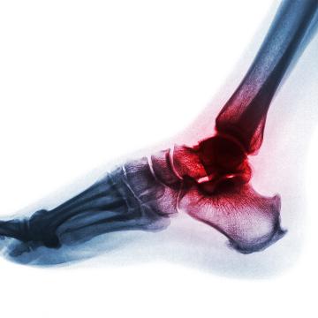 ankle joint pain osteoarthritis
