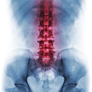 lower back pain osteoarthritis