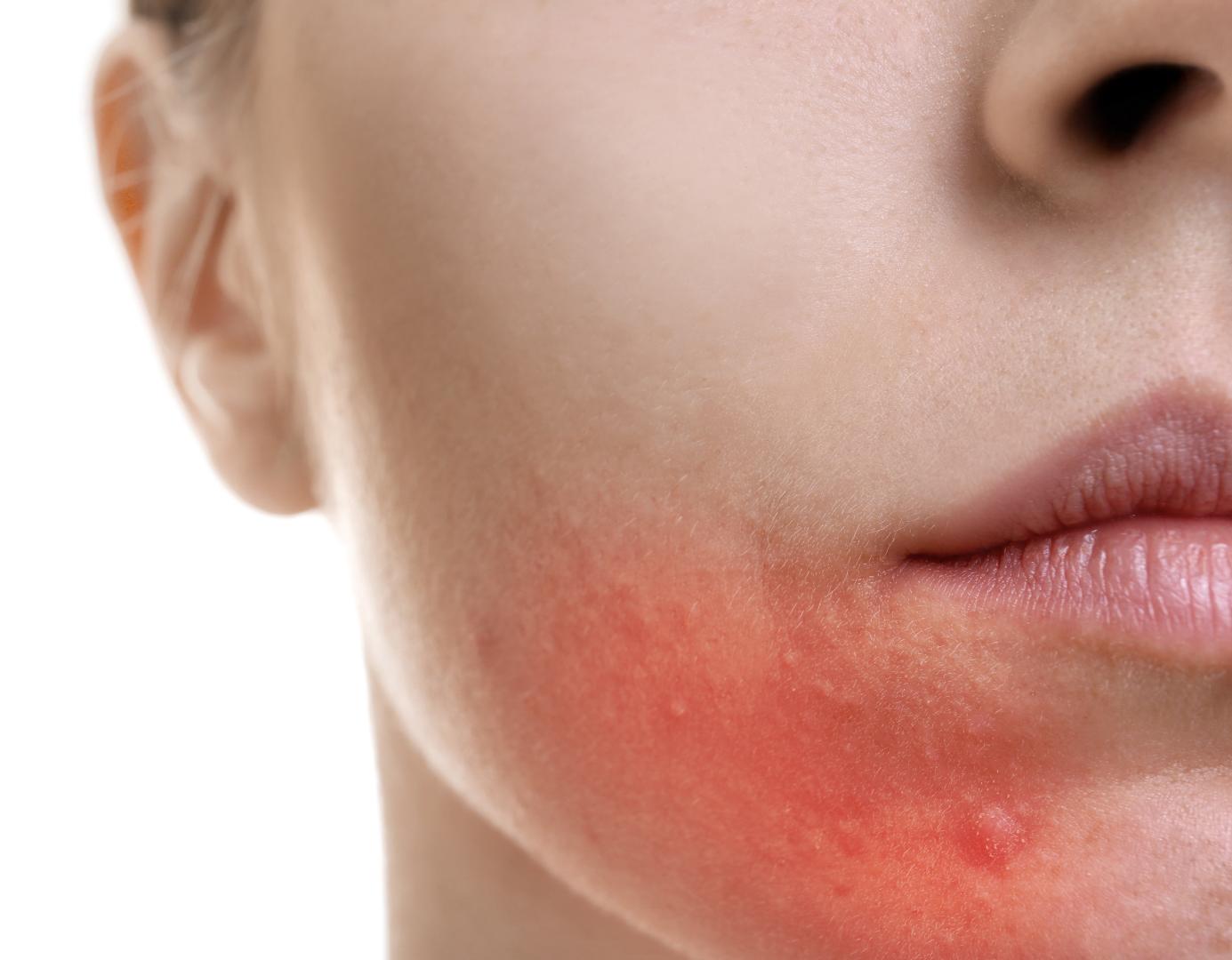 rosacea inflamed skin