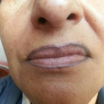 complicacion-en-maquillaje-permanente