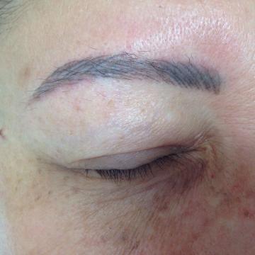 complicacion-en-maquillaje-permanente-2