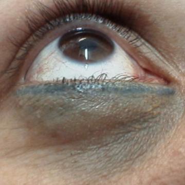 complicacion-en-maquillaje-permanente-3