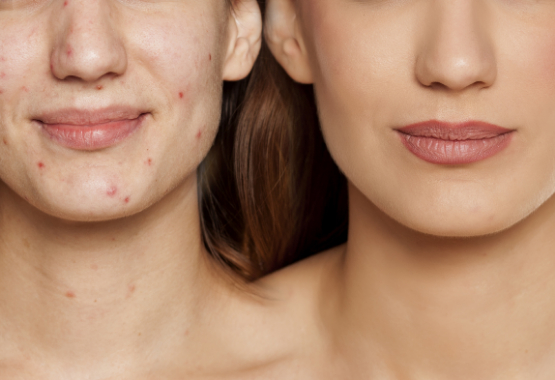 women with blemishes