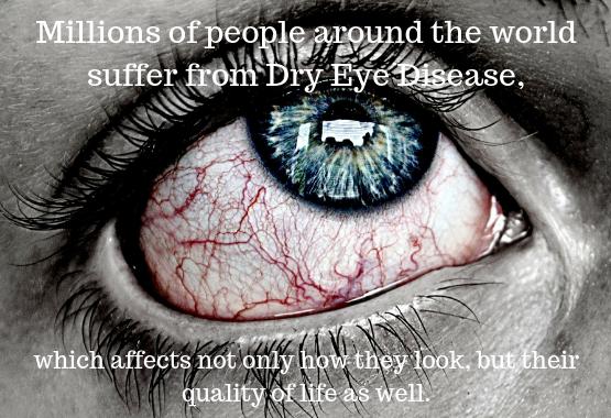 Millions suffer from dry eye disease